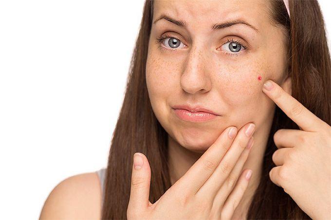 О чём молчит печень: ищем признаки болезней во внешности
