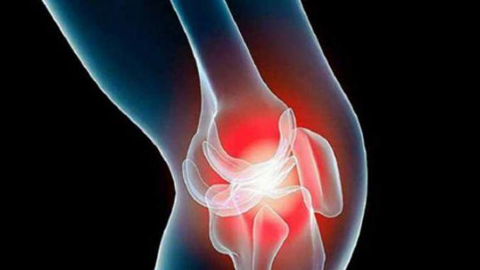 Артротерапия: что это за методика и кому она нужна