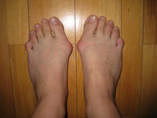 Боли косточек на ногах