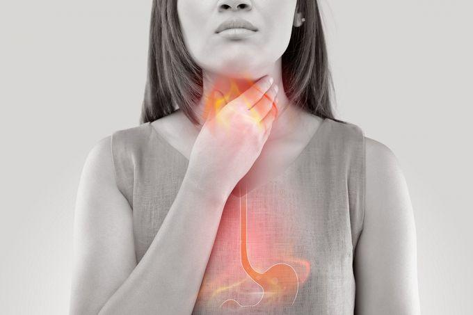 Как изжога повышает риск рака гортани и пищевода