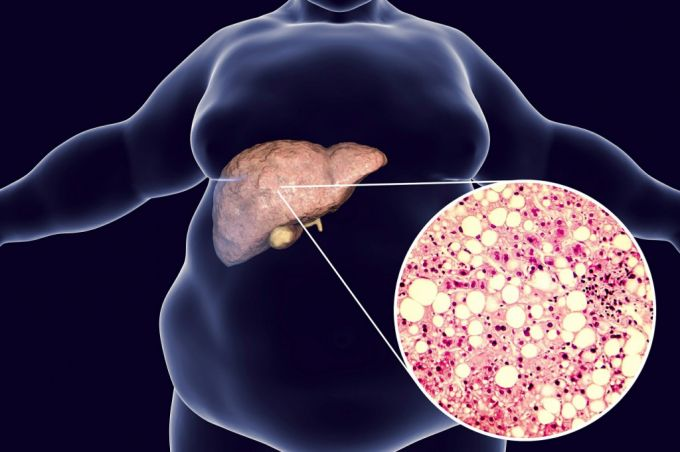 Ожирение печени: как не допустить развития цирроза
