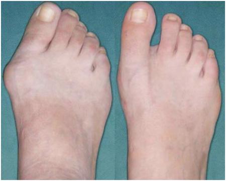 Как избавиться от косточки на большом пальце ноги в